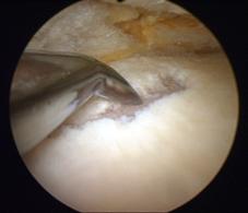 Фотография, сделанная в ходе артроскопии коленного сустава.